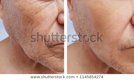 Anti Aging Treatment And Plastic Surgery Concept Stock photo © AndreyPopov