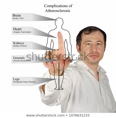 Stock photo: TIA. Medical Concept.
