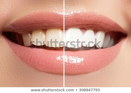 パーフェクト 笑顔 歯の手入れ ホワイトニング 歯 美 ストックフォト © serdechny