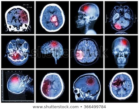 Diagnoza medycznych wydrukowane zamazany tekst czerwony Zdjęcia stock © tashatuvango