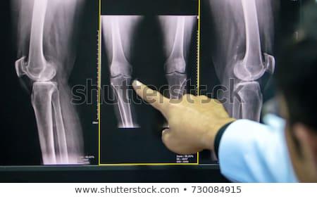 Diagnosis - Osteoarthritis. Medical Concept. Stock photo © tashatuvango