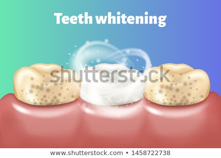 before and after cleaning the teeth Stock photo © adrenalina