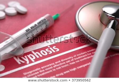 Kyphosis - Printed Diagnosis on Red Background. Stock photo © tashatuvango