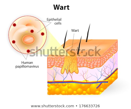 wart human skin anatomy illustration stock photo © bluering