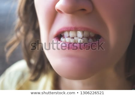 Braces, treatment for a crooked teeth Stock photo © Anna_Om