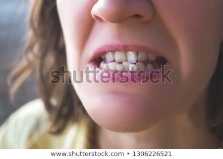 Mund · Hosenträger · medizinischen · glücklich · Gesundheit · Metall - stock foto © anna_om