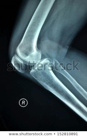 Röntgen helyes térd emberi csontok férfi Stock fotó © Klinker