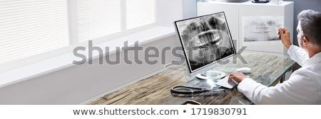 Fogorvos orális szoftver néz fogak röntgen Stock fotó © AndreyPopov