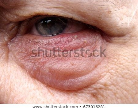Stye On Lower Eyelid Stock photo © photohome