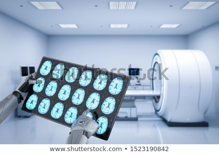 Alzheimer on the Display of Medical Tablet. Stock photo © tashatuvango