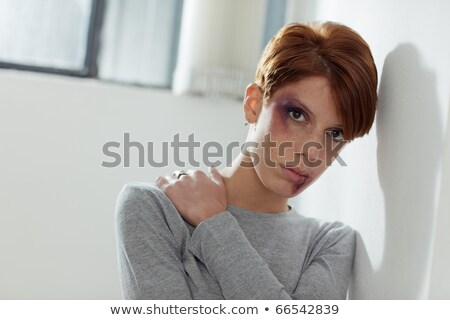 Portrait of young caucasian woman being abused. Horizontal shape, front view, copy space Stock photo © diego_cervo
