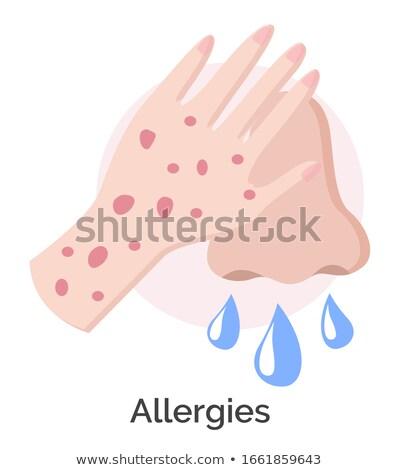 férfi · beteg · orvos · nagyító · rázkódás · kezelés - stock fotó © robuart