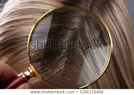 Dandruff In Hair Seen Through Magnifying Glass Stock photo © AndreyPopov