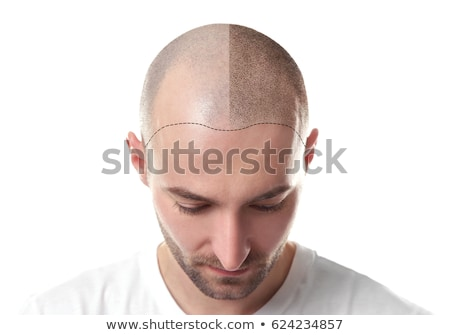 cabelo · unidade · masculino · passo · peruca - foto stock © alexonline