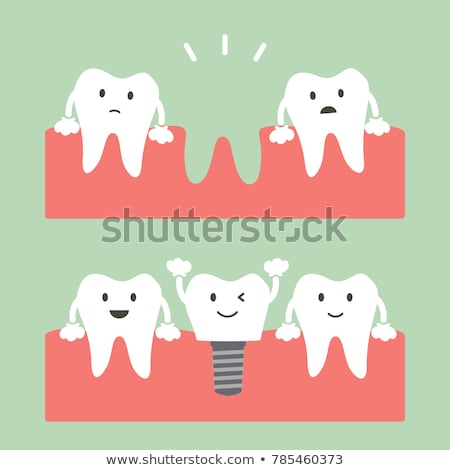 Vector flat style illustration of happy dental implant. Stock photo © curiosity
