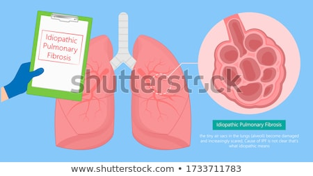 Interstitium And Cancer Stock photo © Lightsource