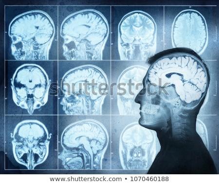 Brain Scanning Imaging Side Stock photo © patrimonio