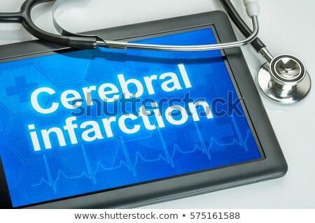 Tabletta diagnózis agyi szívinfarktus kirakat számítógép Stock fotó © Zerbor