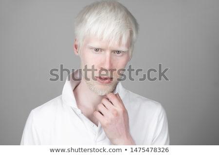 альбинос человека портрет африканских веснушчатый губ Сток-фото © songbird