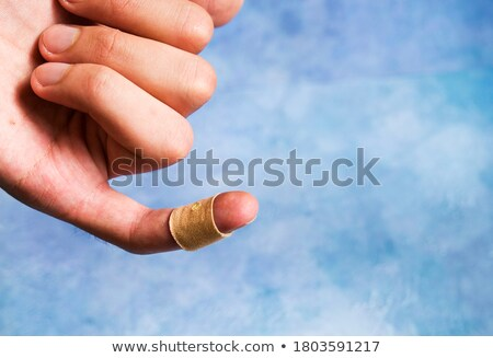 Stock photo: Sprain. Medical Concept on Green Background.