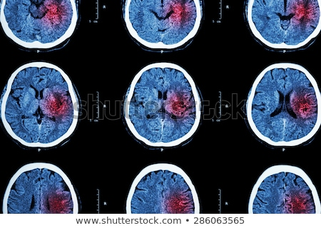 Cerebrovascular Accident Diagnosis. Medical Concept.  Stock photo © tashatuvango
