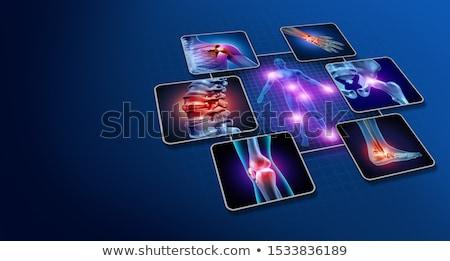 anatomia · doloroso · articulações · 3D · prestados · ilustração - foto stock © lightsource