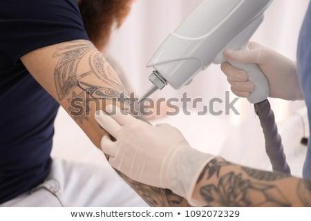 Zdjęcia stock: Laser Tattoo Removal On Mans Hand