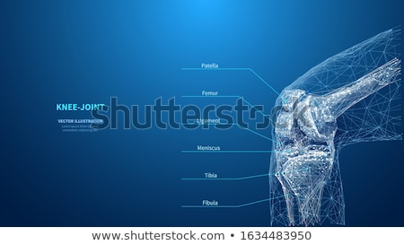 Knee joint pain abstract triangle background Stock photo © Tefi