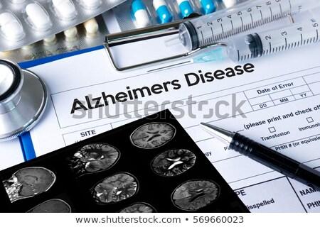TIA Diagnosis. Medical Concept. Stock photo © tashatuvango