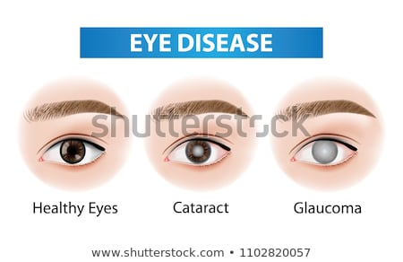 normal eye stock photo © tefi