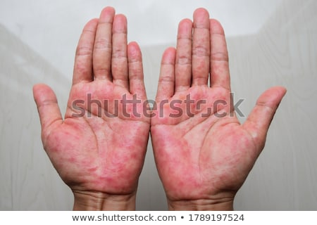 A Human Hand with Eczema Stock photo © bluering