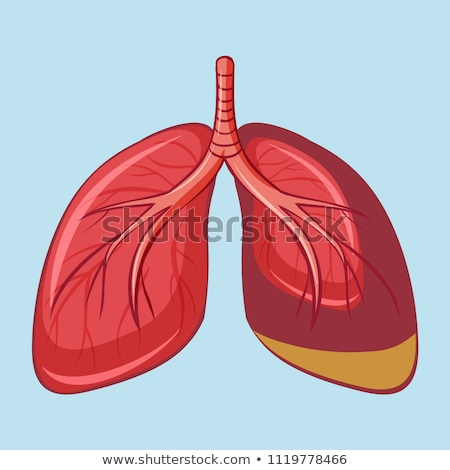 Human Lung with Pleural Mesothelioma Stock photo © bluering