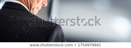Stockfoto: Dandruff Fallen On Businesspersons Shoulder