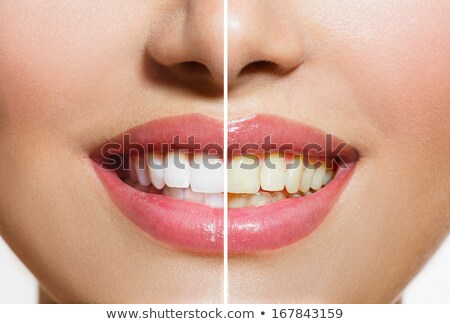 Woman teeth after whitening. Happy smiling woman. Dental health concept. Oral care. Beautiful white  Stock photo © serdechny