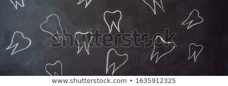 зубов мелом черный доске лечение зубов Сток-фото © galitskaya