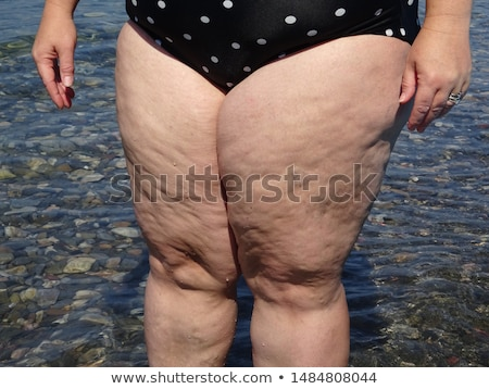 Cellulite and obesity Stock photo © vlad_star