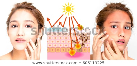 A Girl Getting Sunburn and Tan Stock photo © bluering
