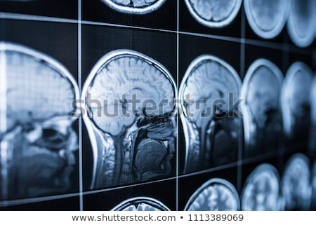 Сток-фото: Human Brain Injury