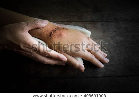 Hands in dark suture wound on hand. Pain of accident concept Stock photo © Virgin