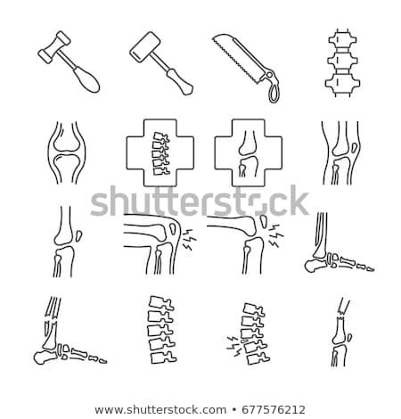 壊れた 背骨 アイコン ベクトル 実例 ストックフォト © pikepicture