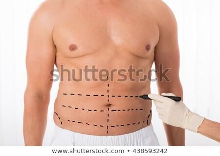 Plasztikai sebészet férfi zsírleszívás test has férfi Stock fotó © AndreyPopov