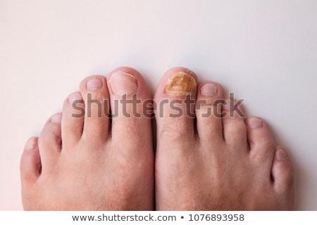 ayak · tırnağı · hastalık · vücut · sağlık · tıp · tırnak - stok fotoğraf © lightsource