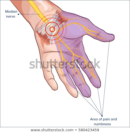 Carpal Tunnel Hand Surgery Stock photo © cteconsulting