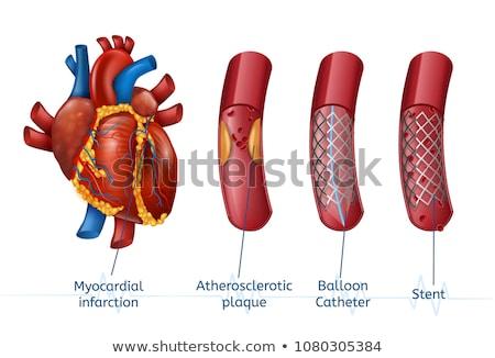 stent angioplasty stock photo © bluering