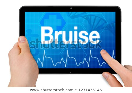 Sprain on the Display of Medical Tablet. Stock photo © tashatuvango