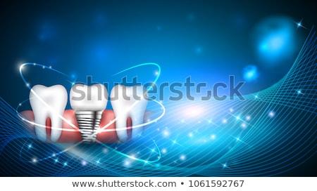 Fogászati implantátum tudományos terv kék DNS Stock fotó © Tefi