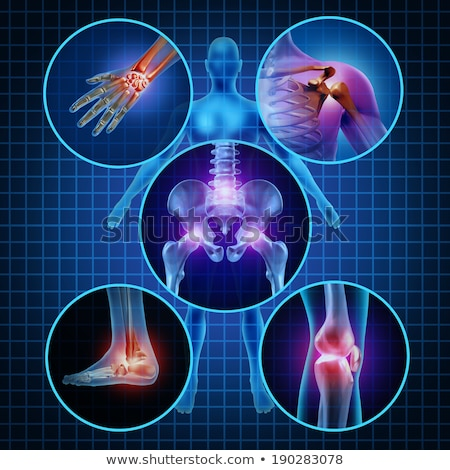 Foto stock: Joint Pain Diagnosis Medical Concept