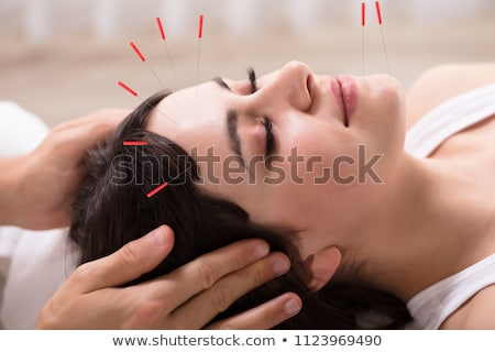 kobieta · akupunktura · igły · terapii · szczegół · muzyka - zdjęcia stock © andreypopov