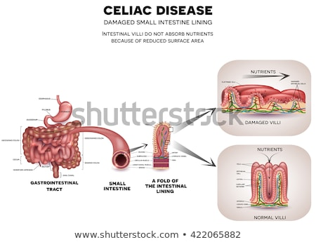 celiac disease small intestine lining damage stock photo © tefi