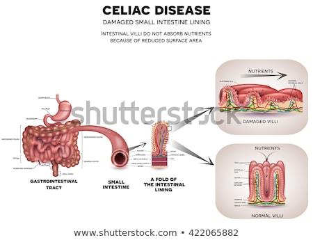 Celiac disease Small intestine lining damage Stock photo © Tefi